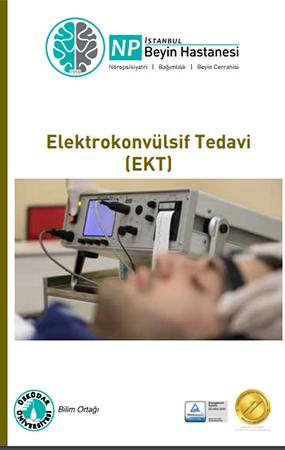 Elektrokonvülsif Tedavi (EKT)