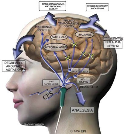 CES (Cranial Electrotherapy Stimulation)